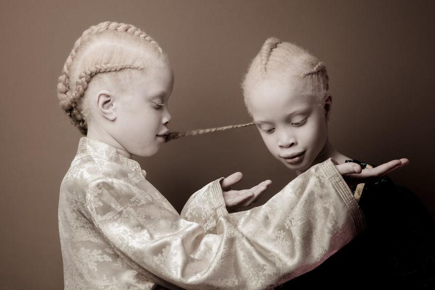 Albino Twins Models